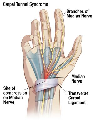 Carpal Tunnel Syndrome Oh My Arthritis