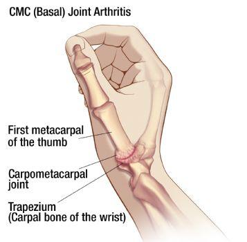 Cmc Thumb Arthritis Oh My Arthritis