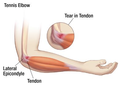 Tennis Elbow Oh My Arthritis